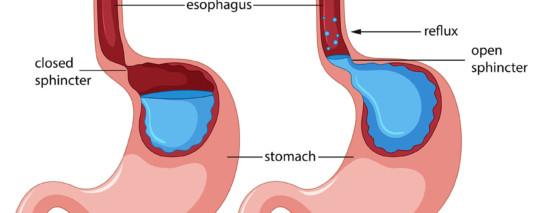 Approccio osteopatico al reflusso gastroesofageo